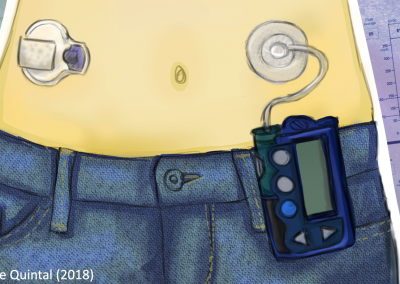 Ethical and psychosocial issues raised by the artificial pancreas